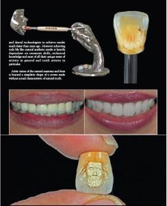 естествената анатомия и форма на възстановяването се простира далеч над изработването на една обикновена корона