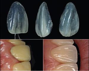Днес пресъздаването на естествените зъби е много по-лесно, благодарение на усъвършенстването на зъботехническите материали и технологии