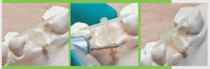 Екстракция и запазване на букалната кост без внасяне на чужди тела