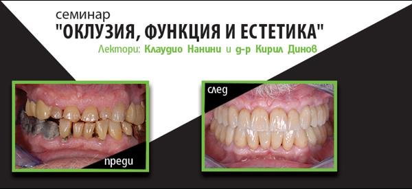 Семинар оклузия и функция, д-р Динов и Нанини